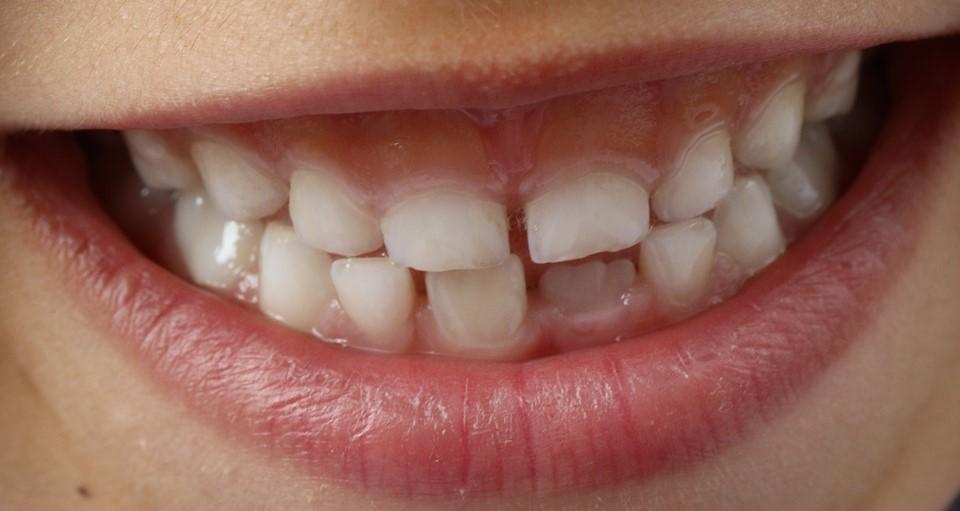"""Картинки по запросу """"Вредные и опасные «мелочи» для зубов наших детей"""""""